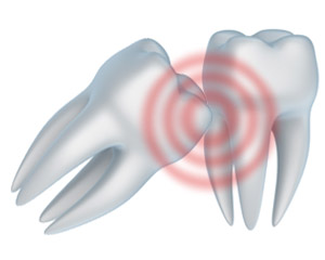A wisdom teeth removal in Reno can help Spanish Springs patients with impacted wisdom teeth.