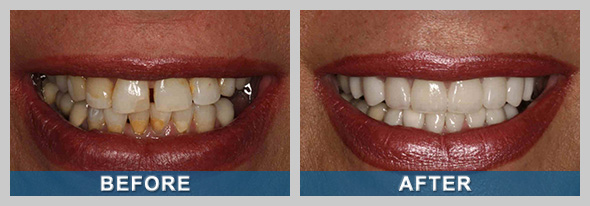 Before and after photo of a Sparks NV patient's dental veneers.