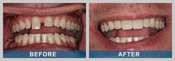 Prepless Veneers Before and After Treatment