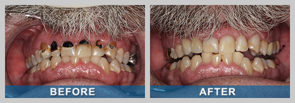 Restorative Dentistry Before and After Treatment