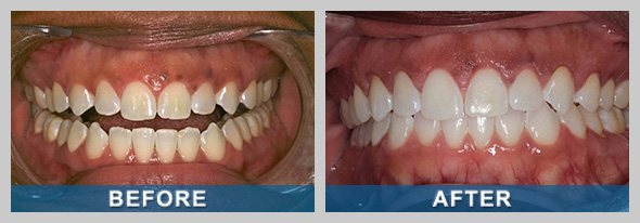 Before and after photo of a Sparks NV patient after teeth whitening in Reno.